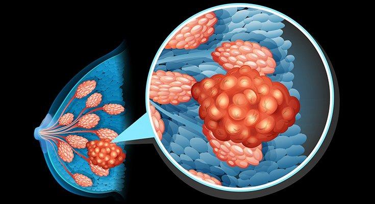 Moterys ir vyrai skirtingai serga vėžiu – kodėl taip yra?, nuotrauka-2